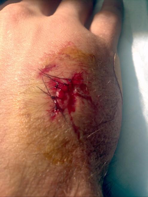 5 Stitches